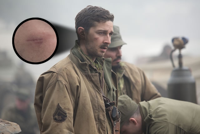 Shia LaBeouf pulled his tooth and cut his face for Fury