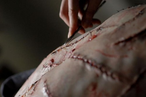 Chest_scars_from_Deaths_of_Ian_Stone
